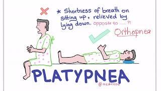 Platypnea-Orthodeoxia Syndrome