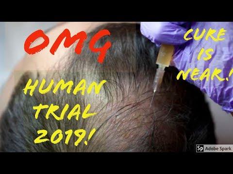 OMG HUMAN CLINICAL TRIALS TO CURE BALDNESS (Dr. Takashi Tsuji) UPDATE