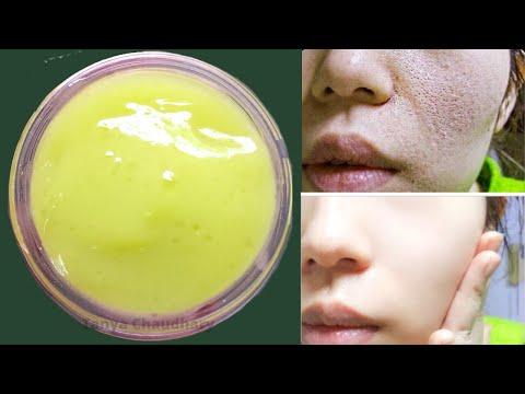 dark-spot-removal-cream-|-skin-whitening-cream-|-remove-dark-spots,-pimples-&-acne-scars-|clear-skin