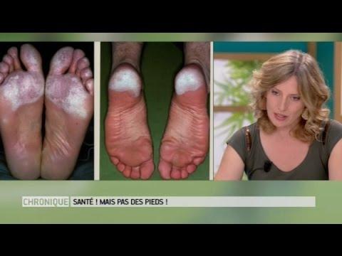 """""""Je pue des pieds"""" : comment lutter contre les mauvaises odeurs ? - Le Magazine de la santé"""