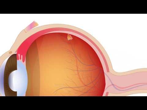 Ep.6 โรควุ้นตาเสื่อม