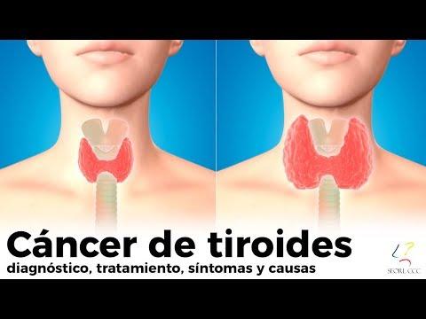 cuando se house un nodulo de tiroides