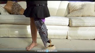 Repeat youtube video AmputeeOT: Review of Alleles Prosthetic Fairing