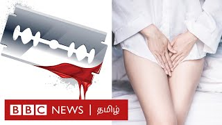 பெண் பிறப்புறுப்பு சிதைப்பு என்றால் என்ன? | genital mutilation | Tamil
