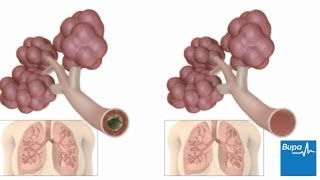 How pneumonia affects the lungs
