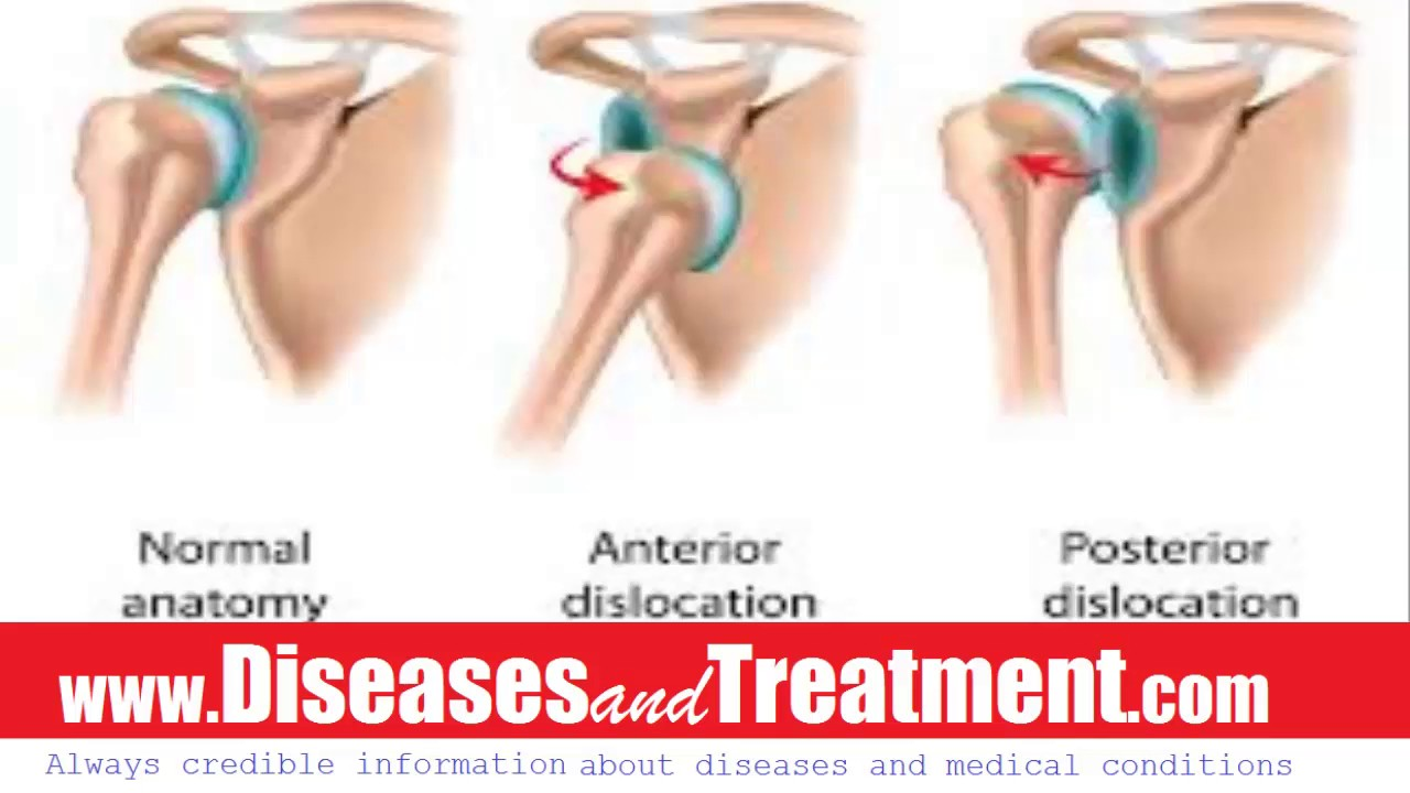 Dislocated Shoulder : Causes, Diagnosis, Symptoms, Treatment ...