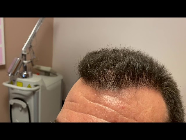 Dallas FUE Hair Transplant Close-Up Results 14 Months After