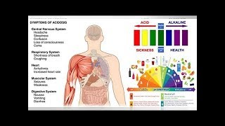 20 Warning Signs You Have High Acidic Levels and 7 Ways to Alkalize Your Body