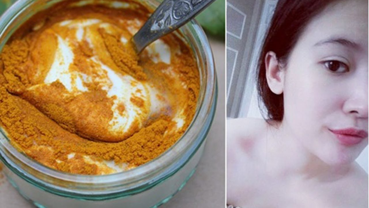 Trộn bột nghệ với sữa chua rồi đắp lên mặt da trắng bóc không còn 1 vết thâm