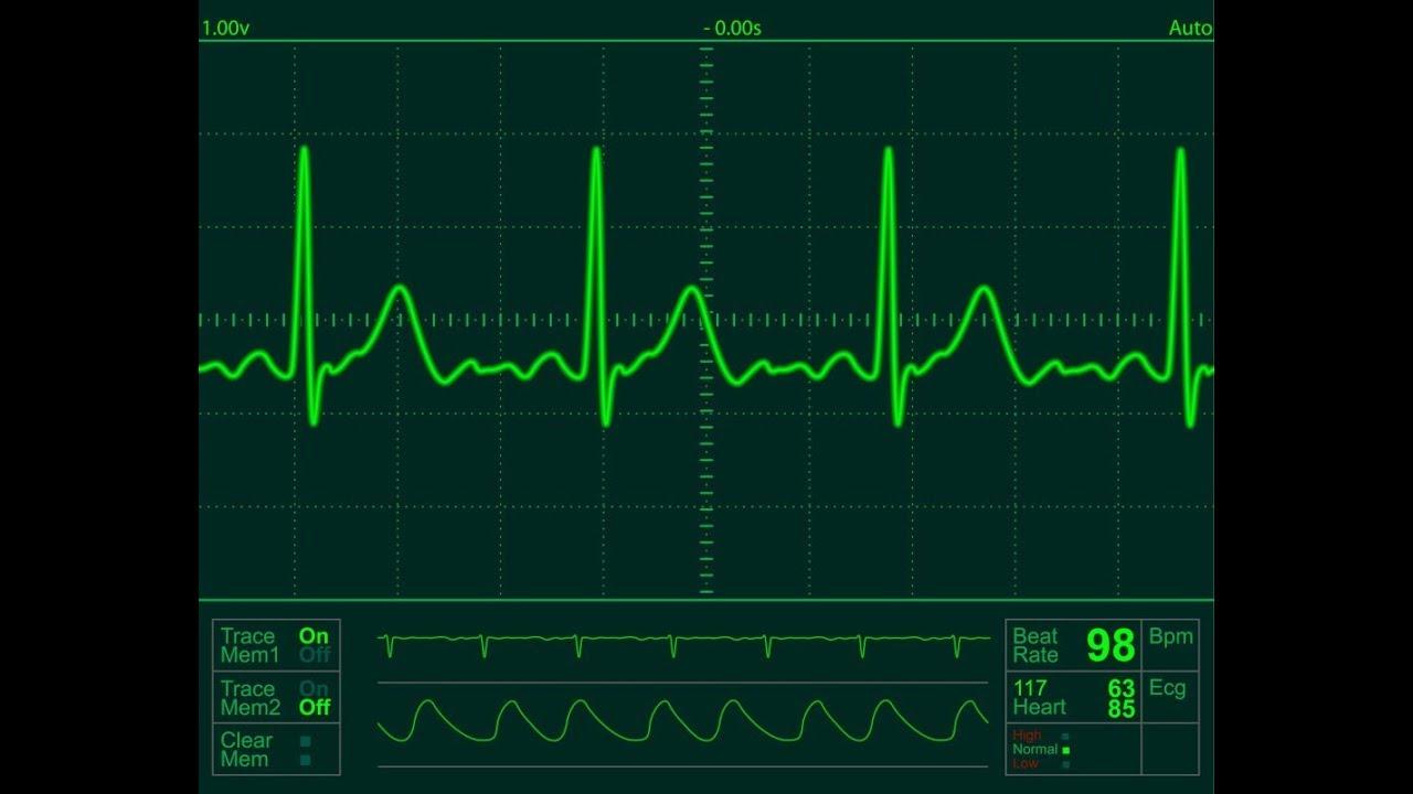 [ 9 algorithms ] ECG Data Smoothing in MATLAB Part 1/2
