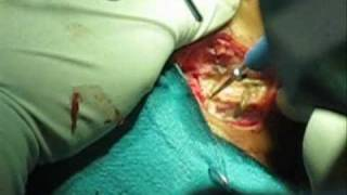 Myringoplasty Surgery.wmv