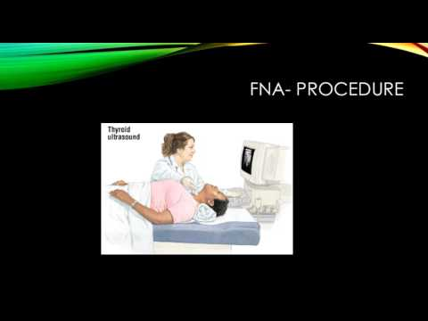 Fine Needle Aspiration  Youtube video