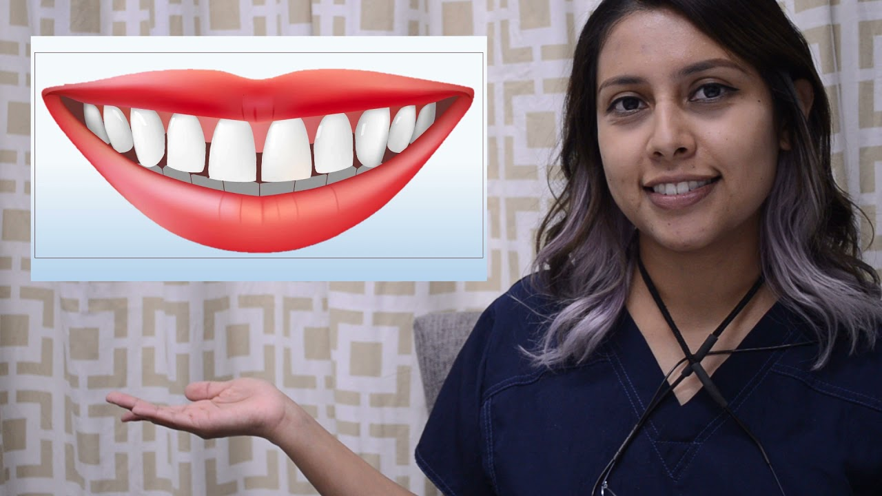 What Type of Floss is Right For Your Teeth?