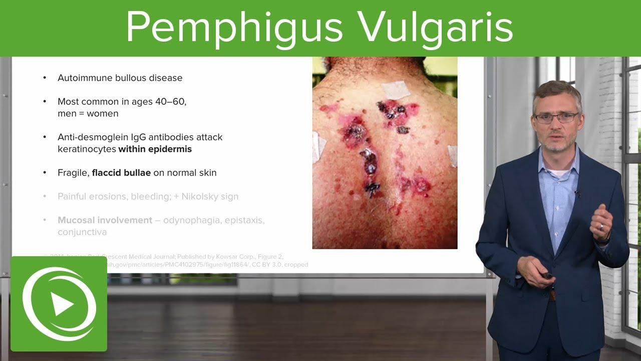 Ocularis pemphigoid