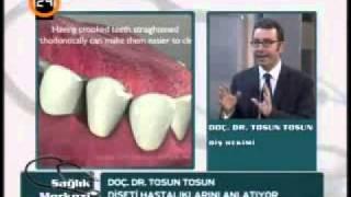 dişeti çekilmelerinde tedavi, periodontal tedavi konseptleri