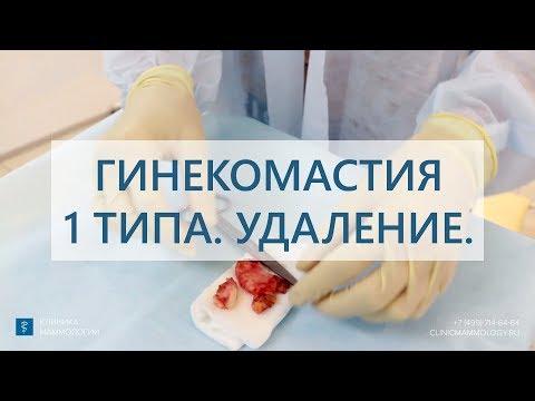 Гинекомастия 1 типа.  Удаление гинекомастии у мужчины.