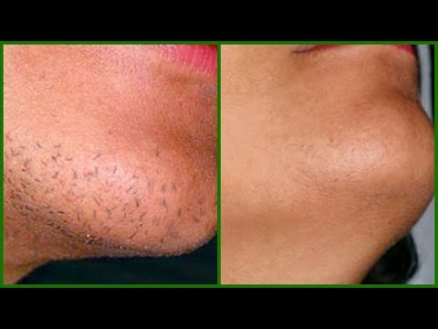 STOP FACIAL HAIR FROM GROWING IN 30 DAY, HAIR WILL TAKE LONGER TO GROW BACK, CHIN HAIR, UPPER LIPS