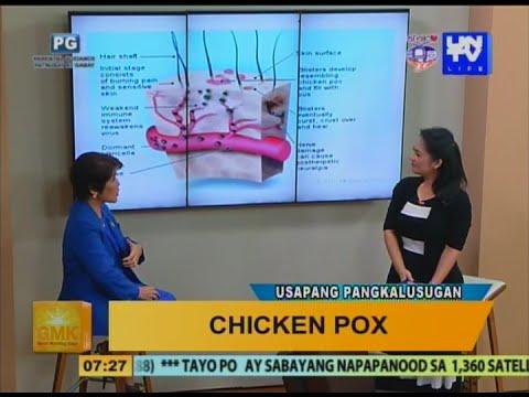 Good Morning Kuya: Chicken Pox - Symptoms And Treatment