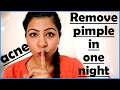 Pimple & Acne Treatment | How To Remove Pimples & Acne Overnight at Home | Get Rid of Pimples