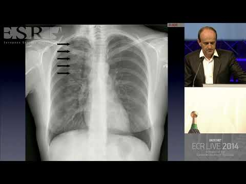 Common and Uncommon Errors in Plain Film and CT Chest - HD [Basic Radiology]