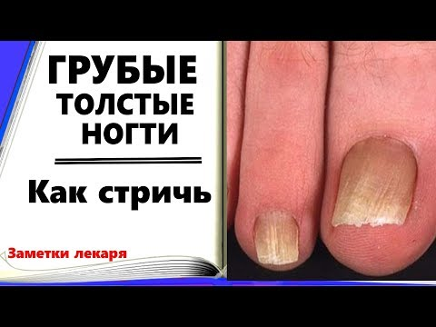 Чем подстричь ногти на ногах пожилому человеку