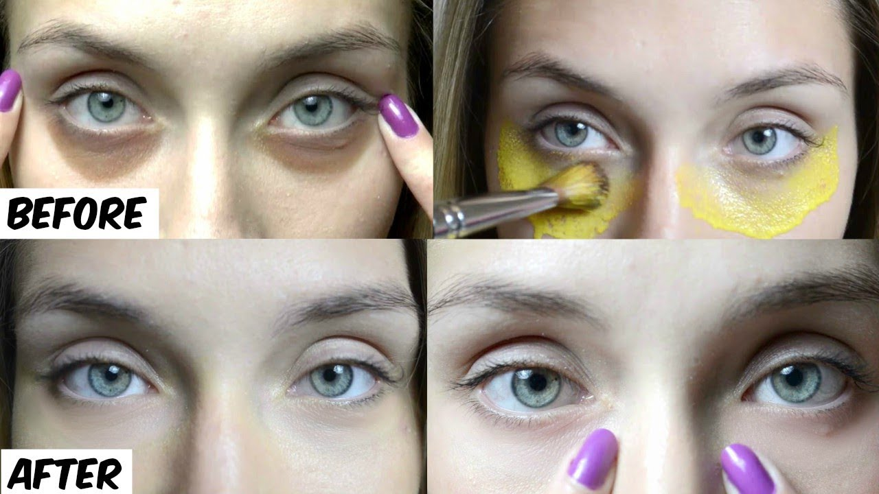 No More Dark Circles 10 Minutes Instant Treatment to ...