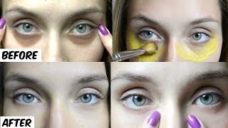 No More Dark Circles 10 Minutes Instant Treatment to Remove Dark circles Under Eyes