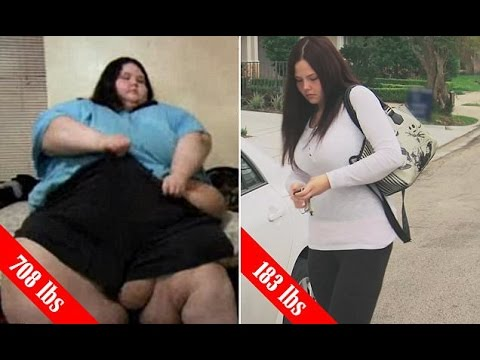 Christina Phillips shows who lost 525LBS after surgery