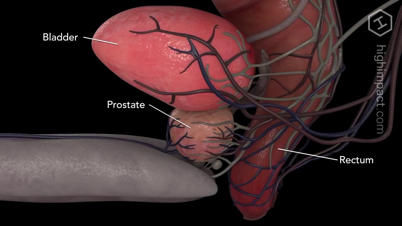 Anatomia prostata para trabalho - YouTube