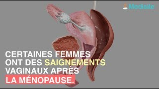 Saignements à la ménopause : attention au cancer de l'endomètre