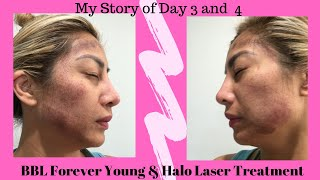 Aloha and welcome to the tiki girl channel. i am doing a vlog of my 3rd 4th day treatment experience using combination sciton bbl forever youn...