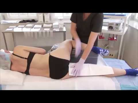 HK Post Operative Inner Thigh and Knee Liposuction