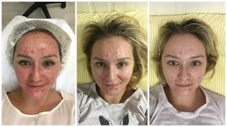 видео Ультразвуковая чистка кожи лица: стоимость, рекомендации, отзывы