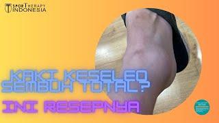 Keseleo atau terkilir, adalah cedera pada ligamen, jaringan yang menghubungkan dua atau lebih tulang.