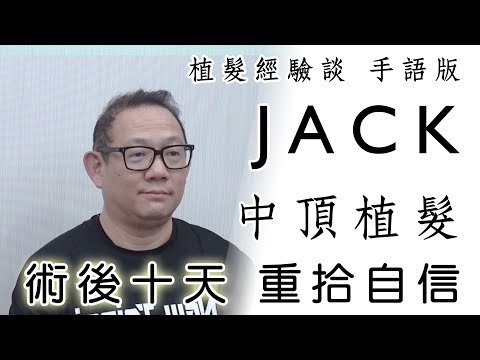 植髮經驗談 手語版│ Jack│ 林宜蓉醫師 Dr.Yi Jung Lin 台灣植髮 Taiwan hair transplant