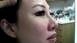hqdefault - Removal Of Acne Scars Singapore