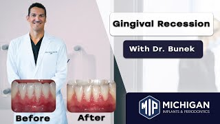 What is Gingival Recession? With Dr. Julius Bunek at Michigan Implants and Periodontics