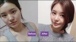 """JW Plastic Surgery Clinic"" Best Korean plastic surgery clinic in Seoul"
