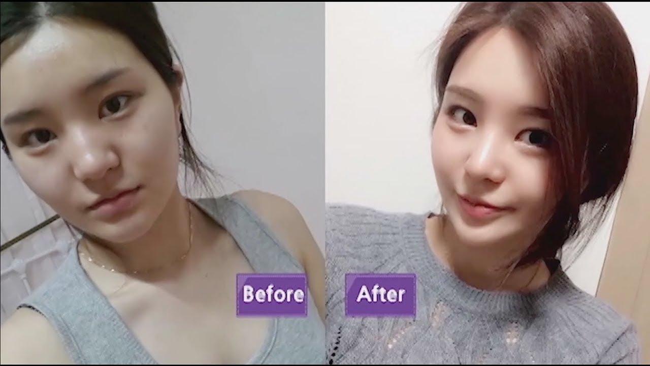 "jw plastic surgery clinic"" best korean plastic surgery clinic in"