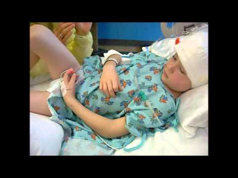 Candon's 3 year journey of Epilepsy and RE, and his Hemispherectomy cuRE.