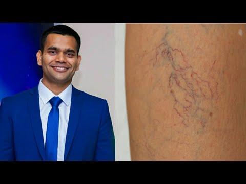 Лечение Варикоз/Звезды На Ногах| Доктор Вивек