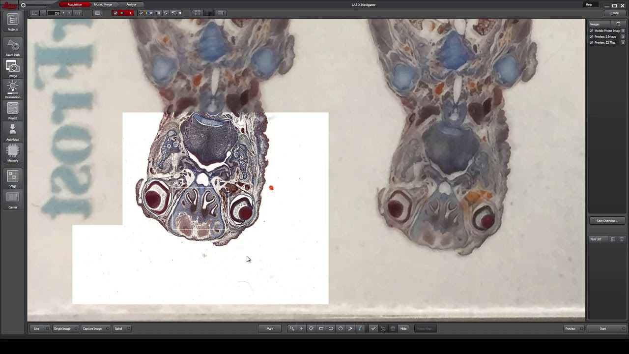 From Sample Overview To High Res Scans With Las X Navigator Youtube