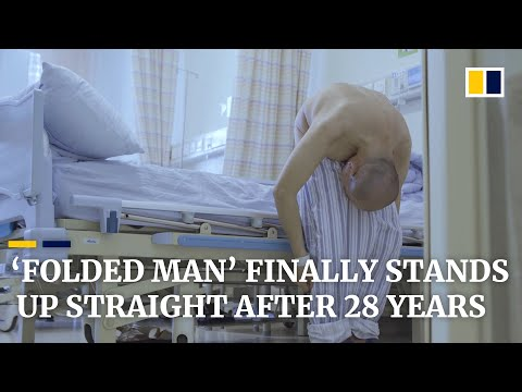 'Folded man' stands up straight after 28 years following surgery that broke bones - South China Morning Post