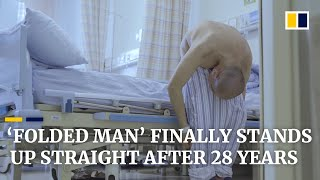 'Folded man' stands up straight after 28 years following surgery that broke bones