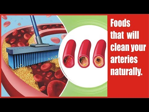 Foods that will clean your arteries naturally remove clogged / How to unclog arteries fast.