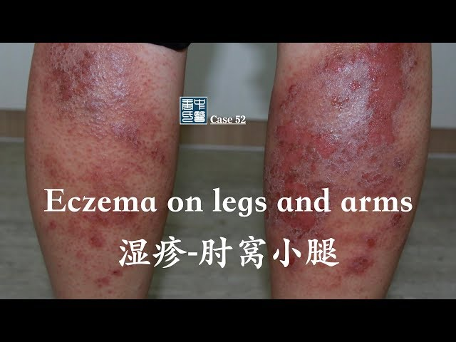 Eczema on lower legs and arms 消退和肘窝湿疹