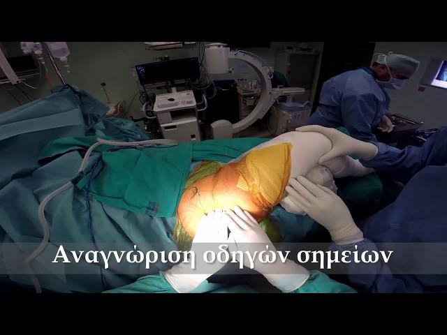 Ολική αρθροπλαστική ισχίου ελάχιστης επεμβατικότητας ALMIS σε ύπτια θέση -  Δρ. Ν. Ροΐδης