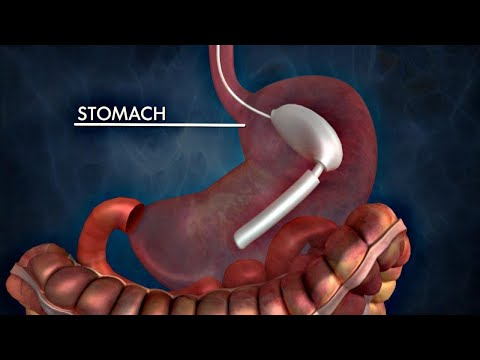 The Possible Dangers of Gastric Balloons for Weight Loss