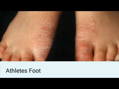 Naturally Cure Athlete's Foot@