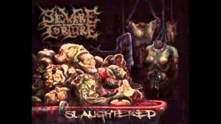 Watch Severe Torture Unholy Misconception video